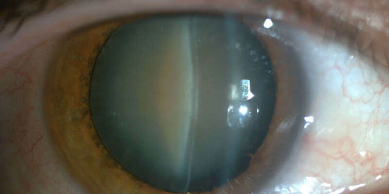cataract-treatment