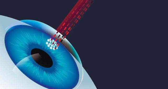 laser-eye-treatment