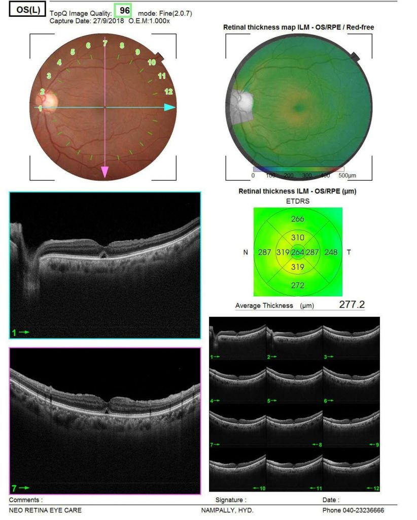 Understand the symptoms, causes, treatment of a Macular Hole