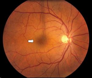 Cystoid-macular-oedema