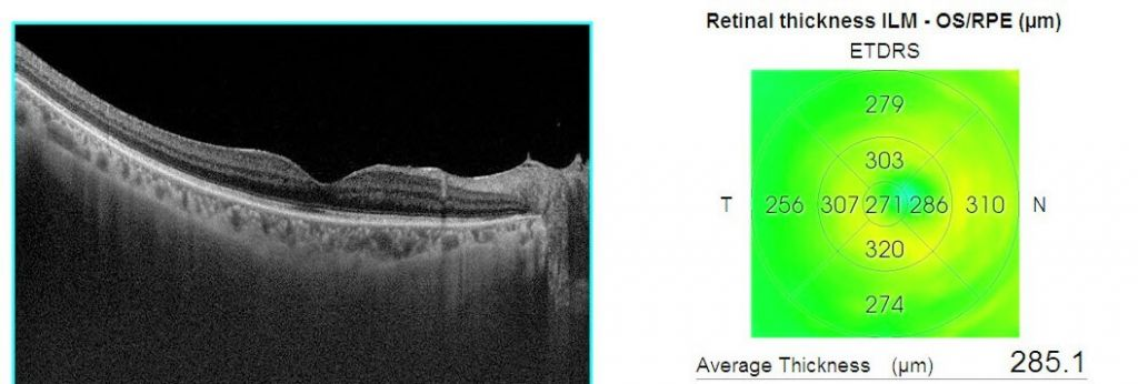 retinal-vein-occlusion