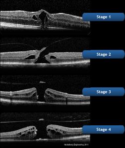 macular-hole-surgery