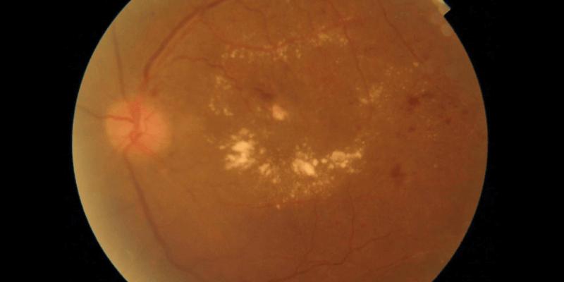 Diabetic-Macular-Oedema