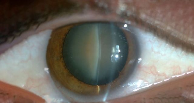 Post-Operative Care After Cataract Surgery