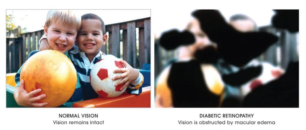 diabetes, diabetic retinopathy