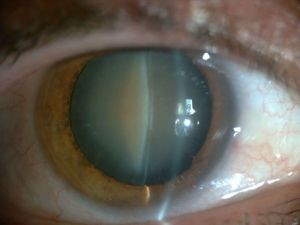 Cataract (clouding of the eye lens)