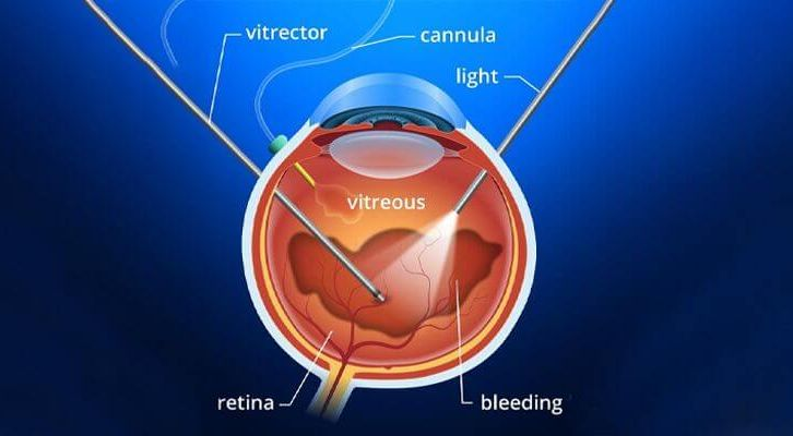 Vitrectomy Surgery/ Vitreo Retinal surgery Postoperative Course and Care