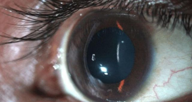 Keratoconus Screening