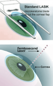 Femtosecond LASIK surgery