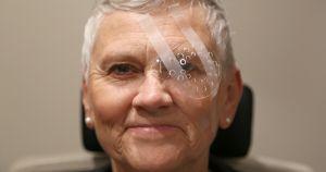 Post-operative eye
