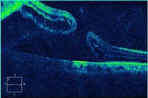 OCT scan of full thickness macular hole
