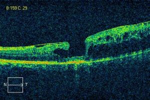 OCT scan of lamellar macular hole