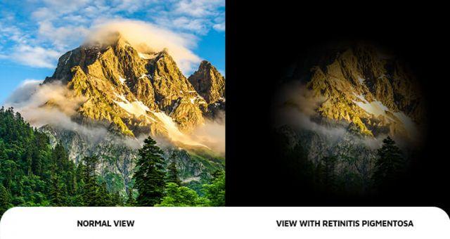 retinitis_pigmentosapic visual