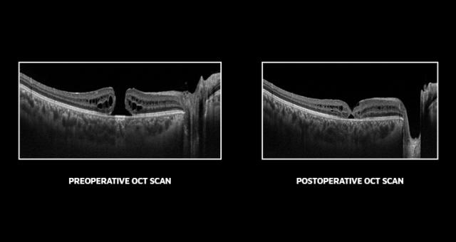macular hole, macular treatment