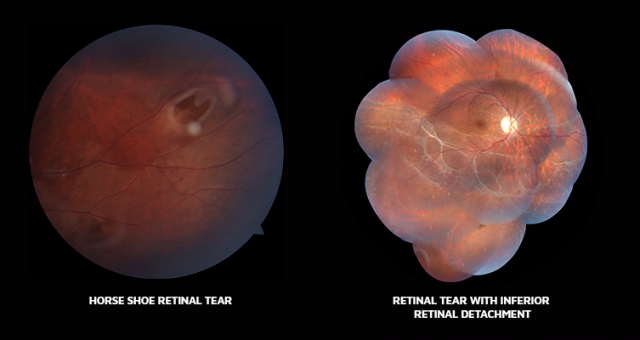 Retinal tear, Horseshoe tear, PVD, Retinal diseases