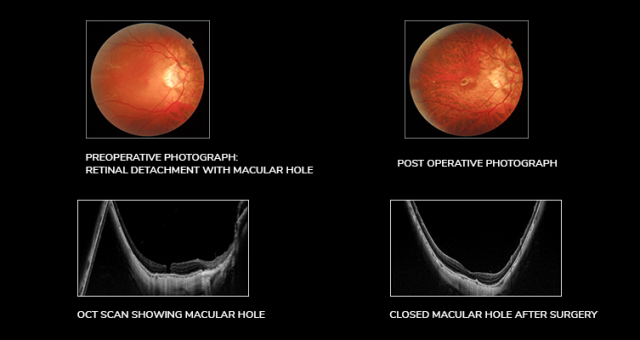 Retinal Detachment: Symptoms, Causes, and Treatment