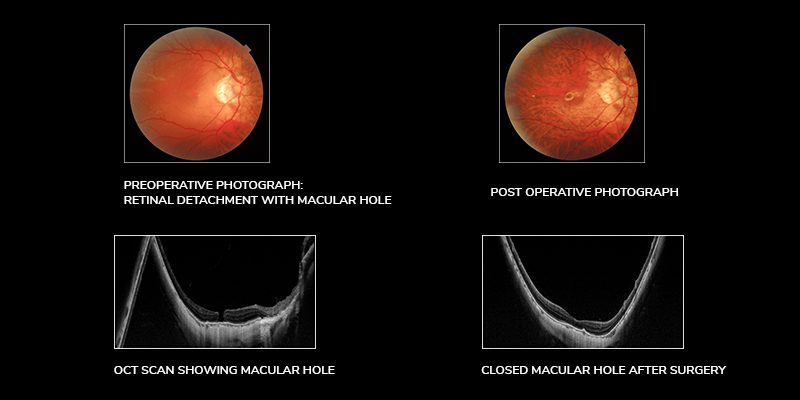Retinal Detachment: Symptoms, Causes, and Treatment
