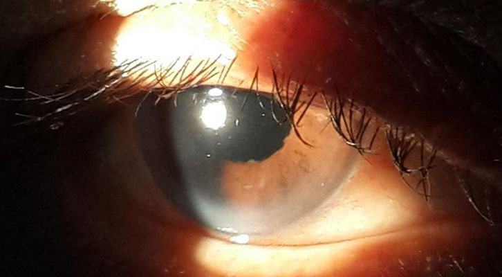 Postoperative picture after implantation of intraocular lens