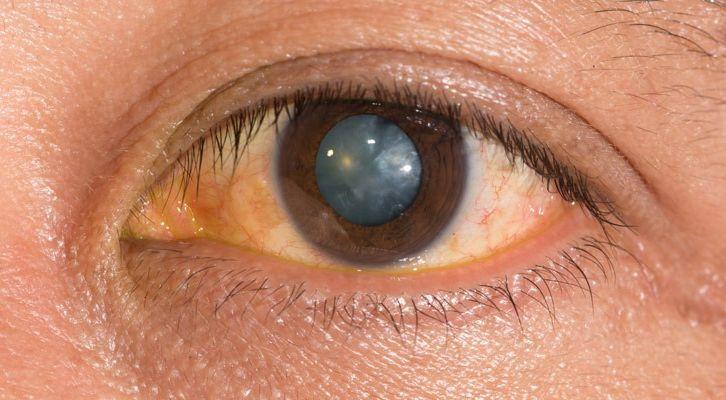 Nuclear-Cataracts