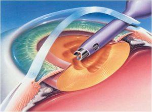 Phaco probe used to perform cataract surgery (phacoemulsification)