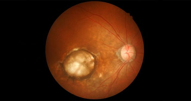 Retinal-Hole-and-Retina-Break