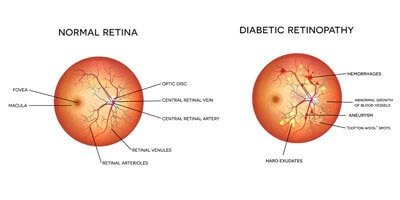 Diabetic Rethonopaty